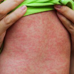 Val epidemic de rujeolă la Braşov. 64 de copii sunt internaţi la Spitalul de Boli Infecţioase
